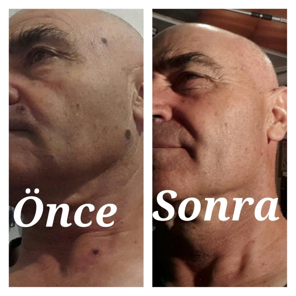 2020/07/1593942355_resat_kilic_gole_(6).jpg